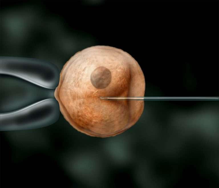 Conception-web - Fécondation in-vitro